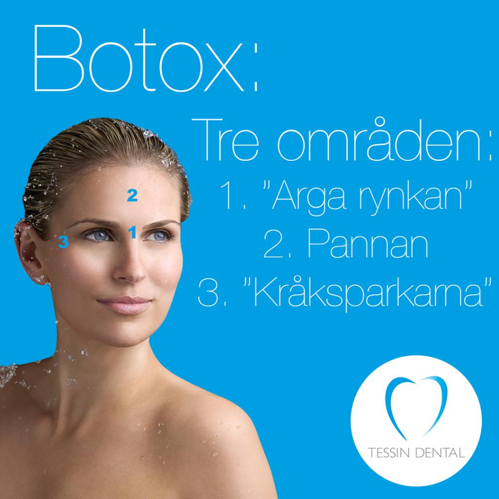 vad kostar botox